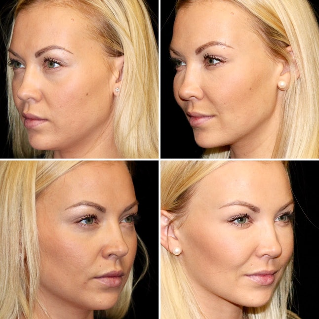 Dr. Cohen's patient's before and after photos.