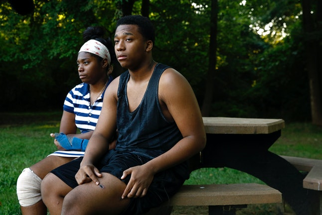 In this Aug. 9 photo, Keshon Williams, right, 16, displays a bullet wound on his leg alongside his sister Keishonna, 18, who was also wounded in her leg during the same shooting, in Newark, Delaware.