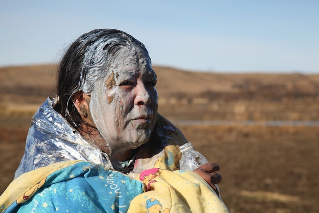 A DAPL protester recovers after being pepper-sprayed by the police.