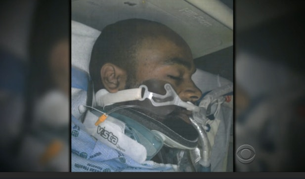 A photo of a hospitalized David Collie is seen in a CBS News broadcast about his police shooting.