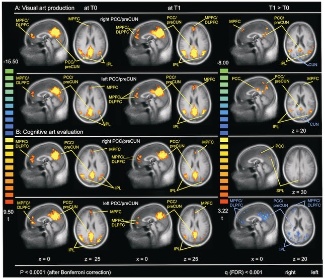 The brain scans of the two groups before the classes (T0) and after 10 weeks (T1).
