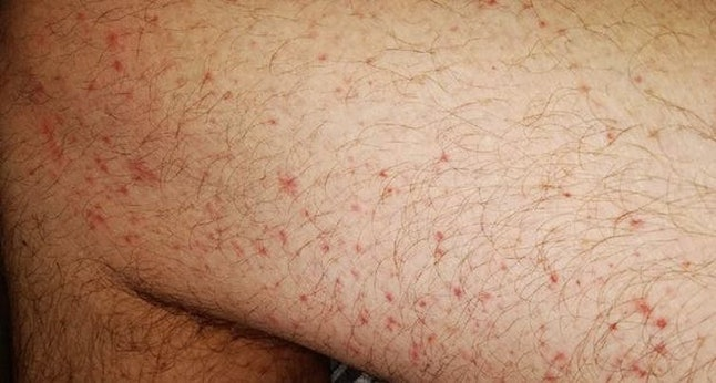 These maculopapular eruptions are associated with more severe disease.