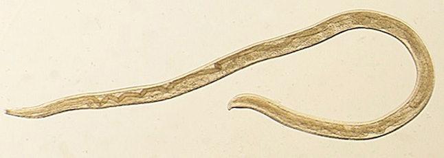 Fotografía de un gusano del ojo Thelazia gulosa. Este parásito infecta los ojos del ganado en el norte de Estados Unidos y el sur de Canadá. Una mujer en Oregon afectada en un ojo por estos gusanos es el primer caso conocido de una infección parasitaria transmitida por moscas. Catorce gusanos fueron retirados del ojo izquierdo de la mujer de 26 años en agosto de 2106. Los científicos informaron del caso el lunes 12 de febrero de 2018